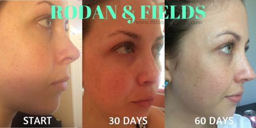 Rodan & Fields - Side View